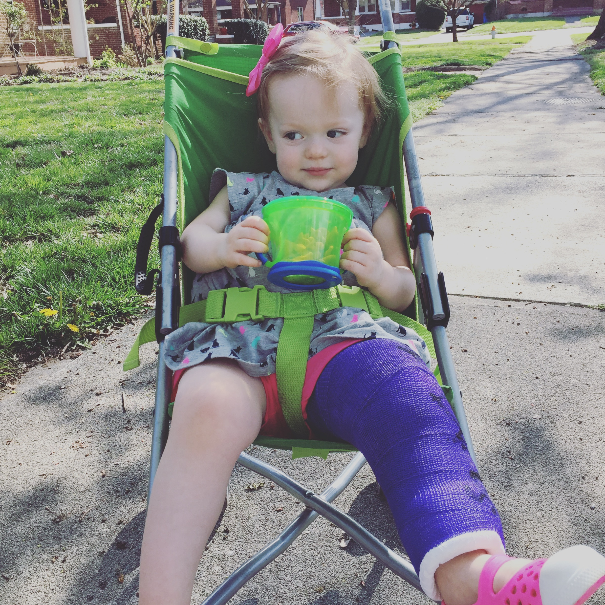 More Than I Ever Wanted to Know About a Toddler with a Broken Femur
